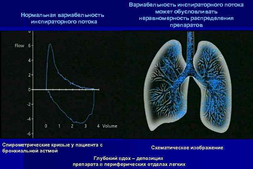 Нормальная вариабельность инспираторного потока Вариабельность инспираторного потока может обусловливать неравномерность распределения препаратов Спирометрические кривые