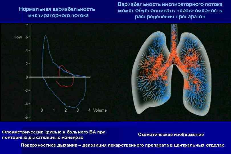 Нормальная вариабельность инспираторного потока Флоуметрические кривые у больного БА при повторных дыхательных маневрах Вариабельность