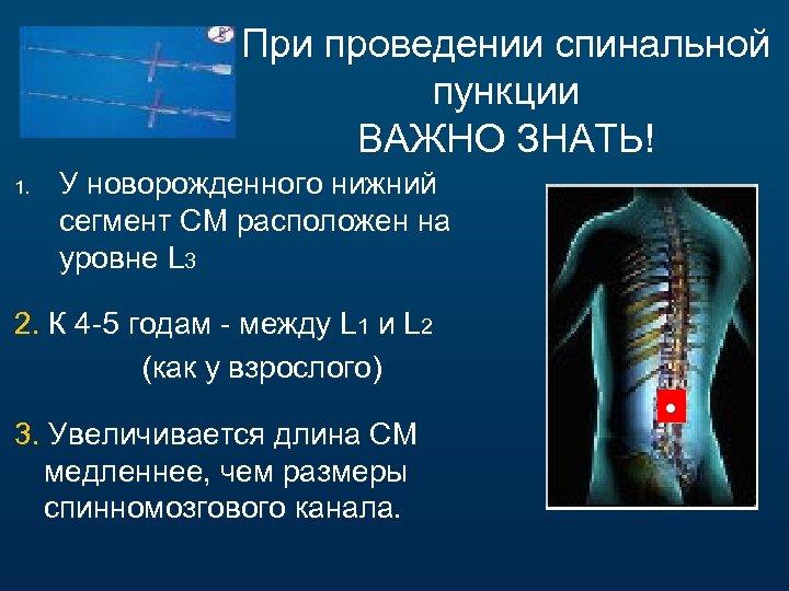 При проведении спинальной пункции ВАЖНО ЗНАТЬ! 1. У новорожденного нижний сегмент СМ расположен на