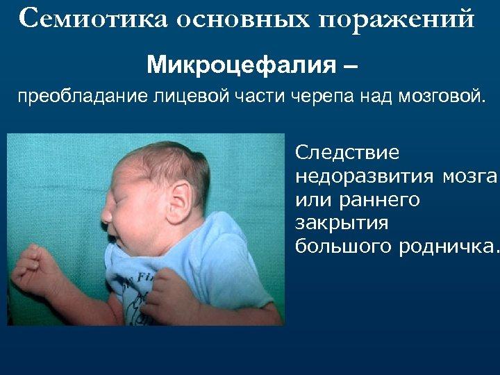 Семиотика основных поражений Микроцефалия – преобладание лицевой части черепа над мозговой. Следствие недоразвития мозга