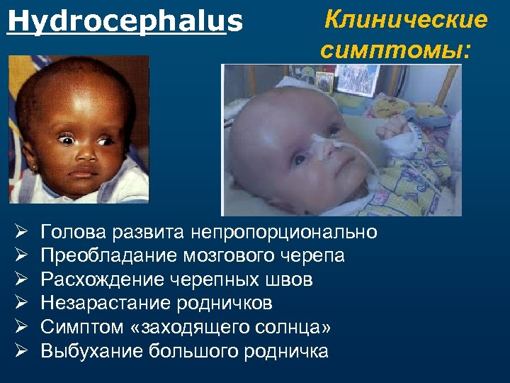 Hydrocephalus Ø Ø Ø Клинические симптомы: Голова развита непропорционально Преобладание мозгового черепа Расхождение черепных