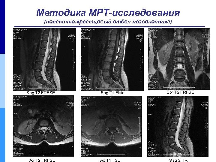 Методика МРТ-исследования (пояснично-крестцовый отдел позвоночника) Sag T 2 FRFSE Ax T 2 FRFSE Sag