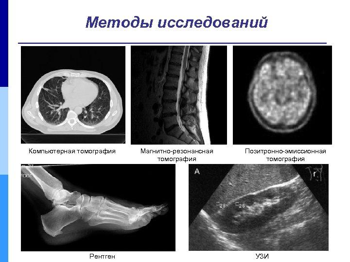 Методы исследований Компьютерная томография Рентген Магнитно-резонансная томография Позитронно-эмиссионная томография УЗИ