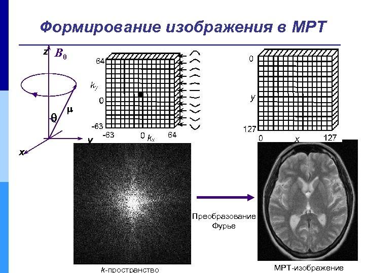 Формирование изображения в МРТ z B 0 y x Преобразование Фурье k-пространство МРТ-изображение