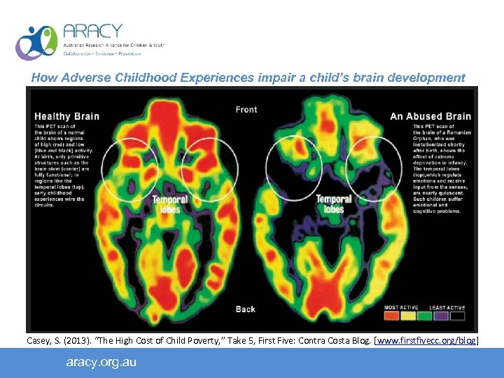 How Adverse Childhood Experiences impair a child's brain development Early childhood home environment predicts