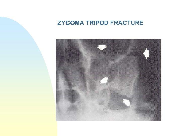 ZYGOMA TRIPOD FRACTURE