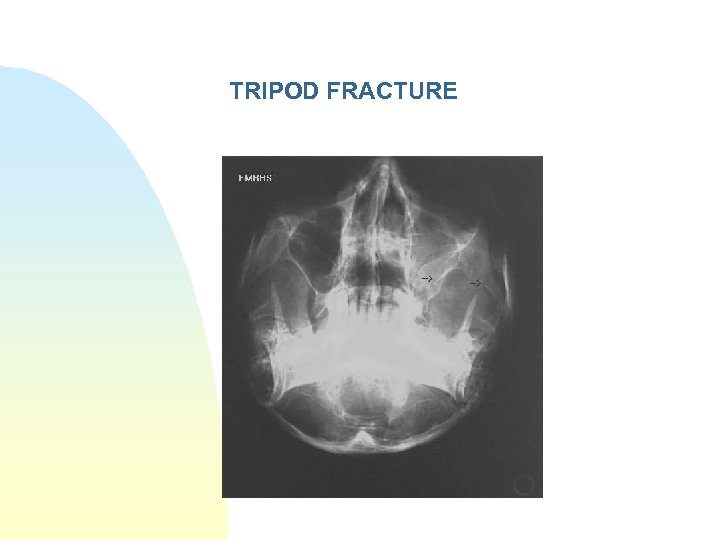 TRIPOD FRACTURE