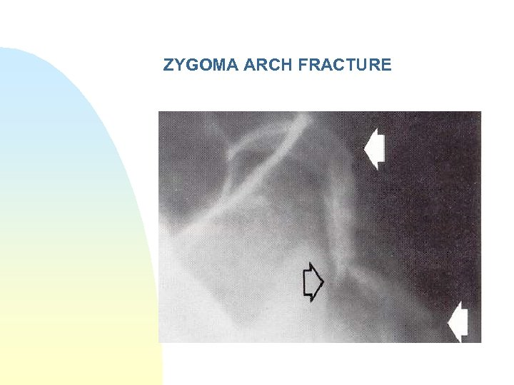 ZYGOMA ARCH FRACTURE