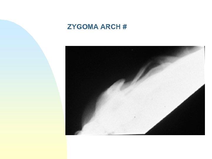ZYGOMA ARCH #