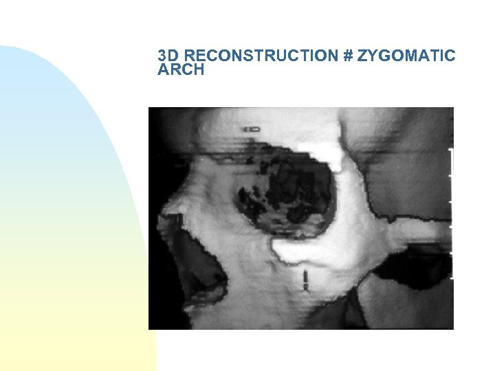 3 D RECONSTRUCTION # ZYGOMATIC ARCH