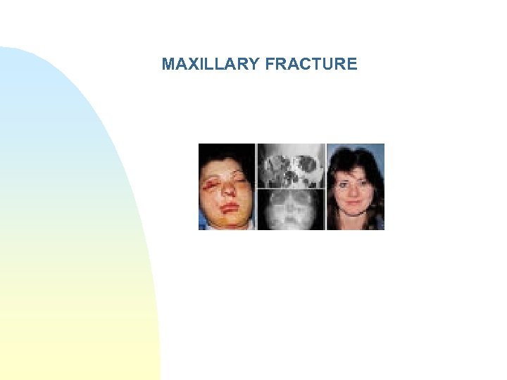 MAXILLARY FRACTURE