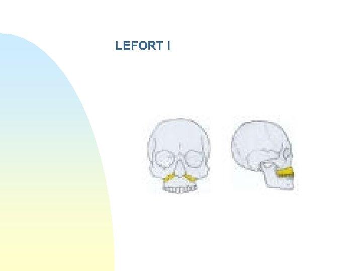 LEFORT I