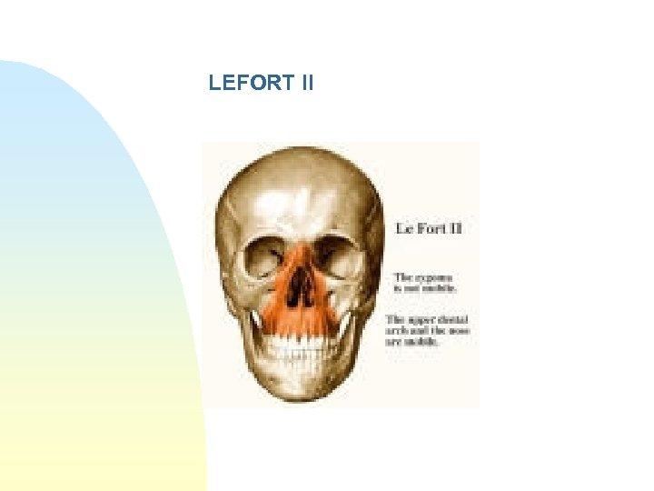 LEFORT II