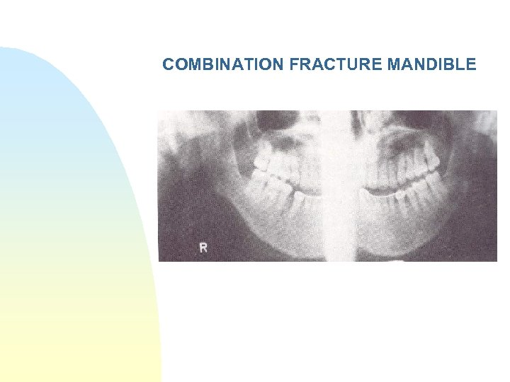 COMBINATION FRACTURE MANDIBLE