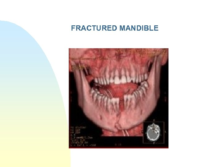 FRACTURED MANDIBLE