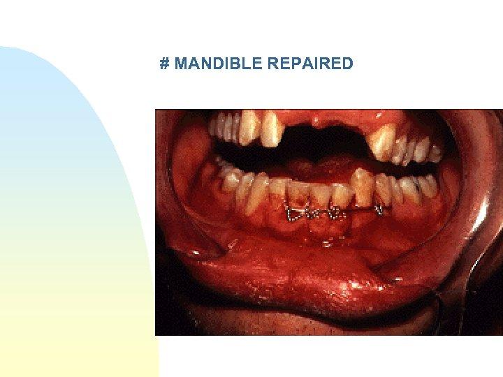 # MANDIBLE REPAIRED