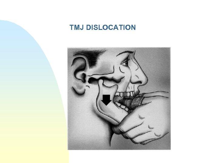 TMJ DISLOCATION