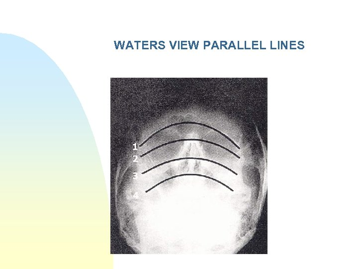 WATERS VIEW PARALLEL LINES