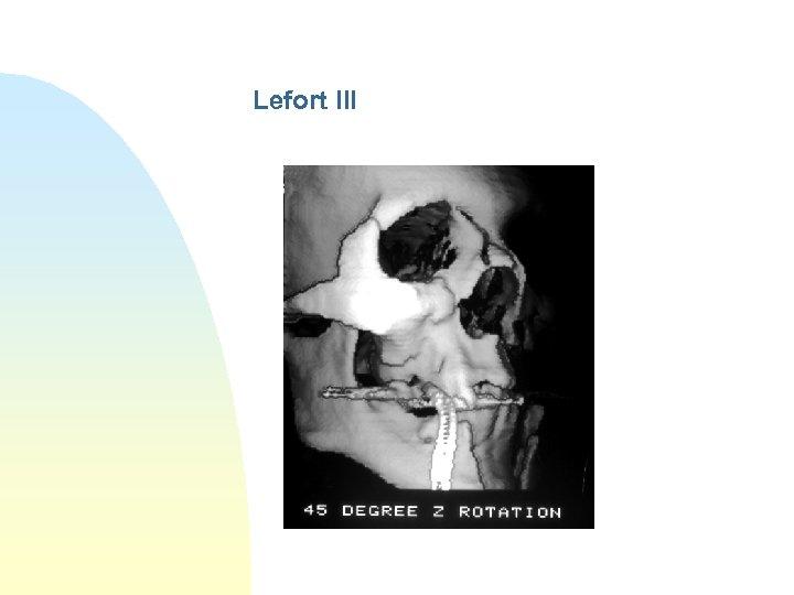 Lefort III