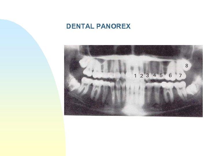 DENTAL PANOREX