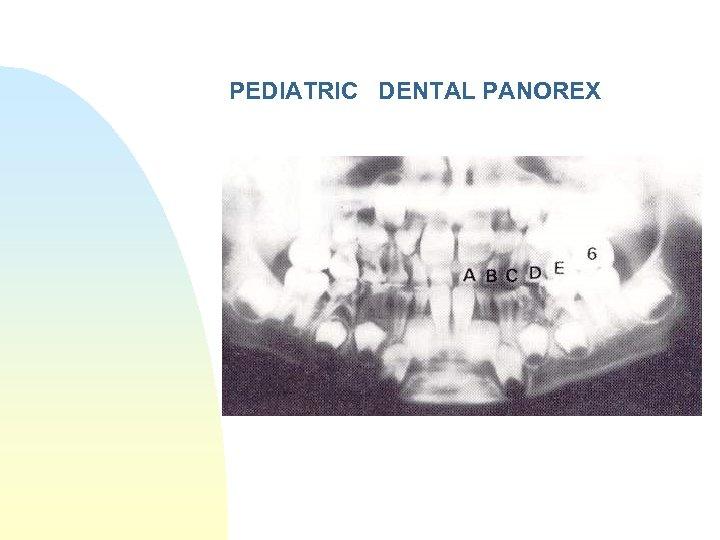 PEDIATRIC DENTAL PANOREX