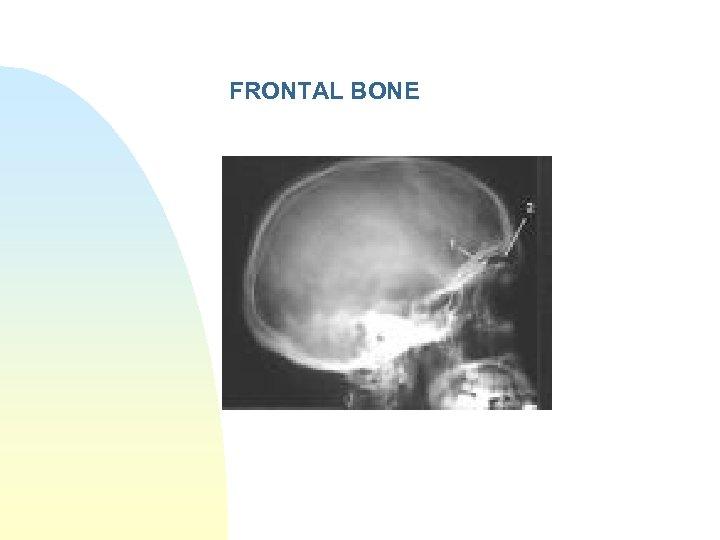 FRONTAL BONE