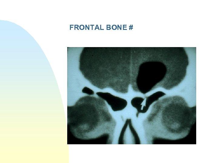 FRONTAL BONE #