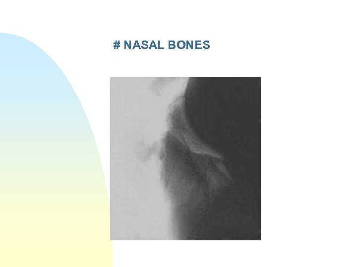 # NASAL BONES