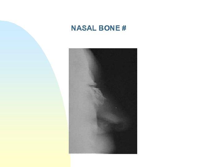 NASAL BONE #
