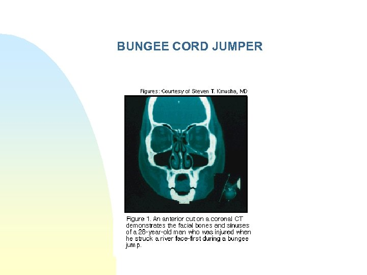 BUNGEE CORD JUMPER