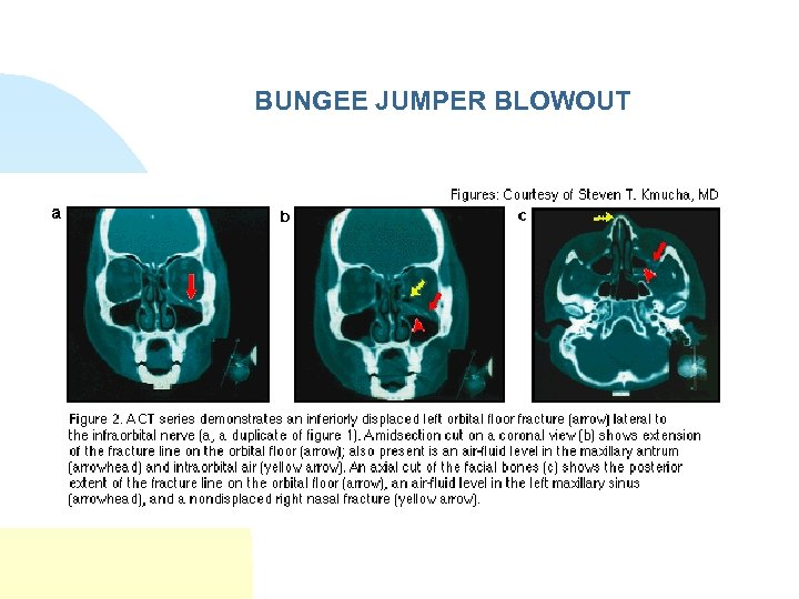 BUNGEE JUMPER BLOWOUT