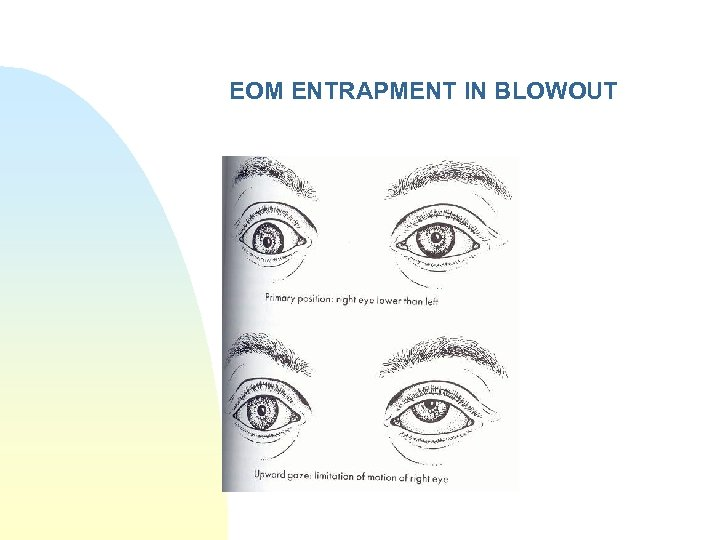 EOM ENTRAPMENT IN BLOWOUT