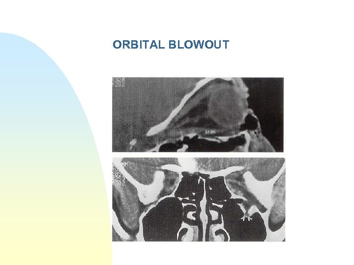 ORBITAL BLOWOUT