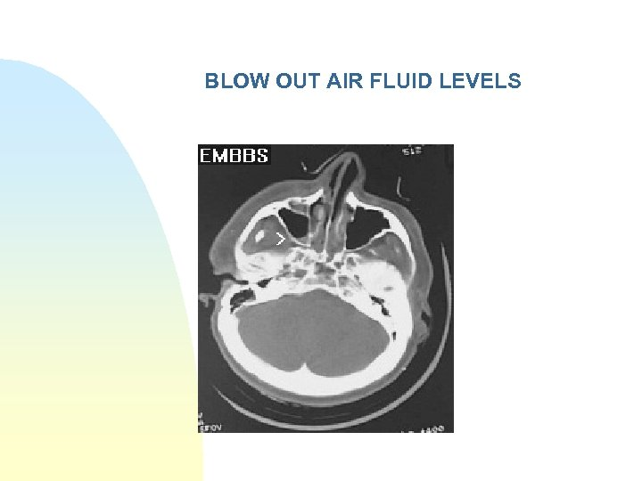 BLOW OUT AIR FLUID LEVELS
