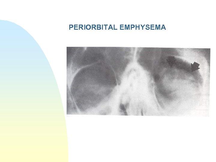 PERIORBITAL EMPHYSEMA
