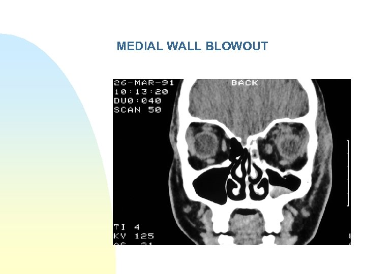 MEDIAL WALL BLOWOUT