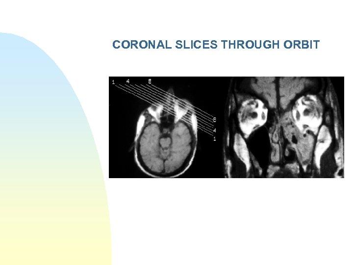 CORONAL SLICES THROUGH ORBIT