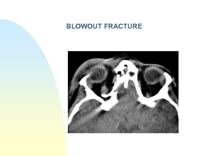 BLOWOUT FRACTURE