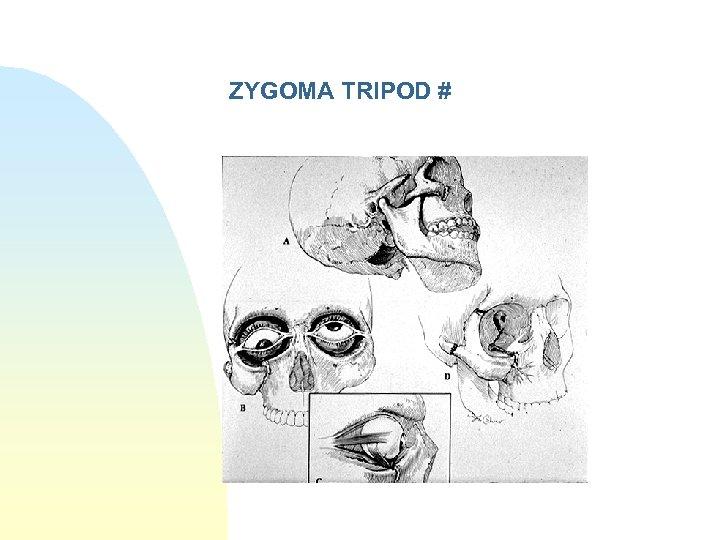 ZYGOMA TRIPOD #