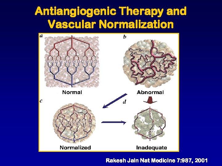 Antiangiogenic Therapy and Vascular Normalization Rakesh Jain Nat Medicine 7: 987, 2001