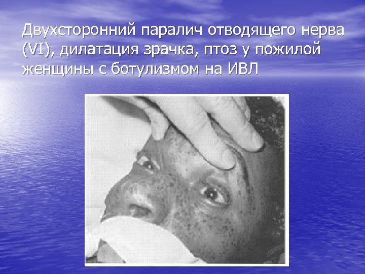 Двухсторонний паралич отводящего нерва (VI), дилатация зрачка, птоз у пожилой женщины с ботулизмом на