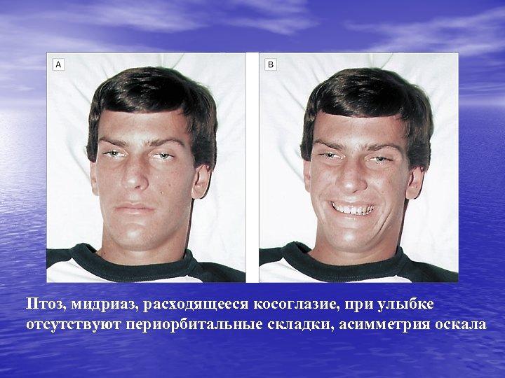 Птоз, мидриаз, расходящееся косоглазие, при улыбке отсутствуют периорбитальные складки, асимметрия оскала