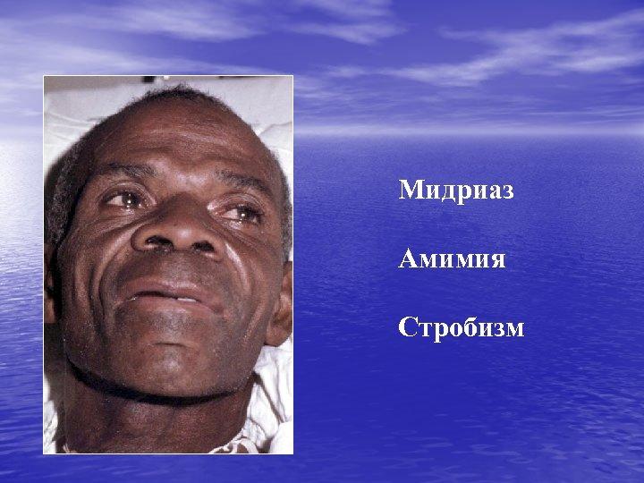 Мидриаз Амимия Стробизм