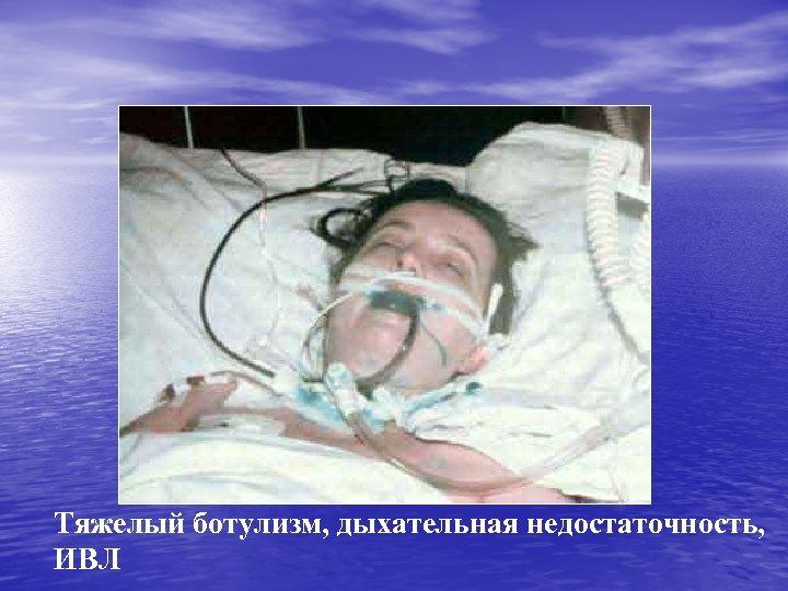 Тяжелый ботулизм, дыхательная недостаточность, ИВЛ