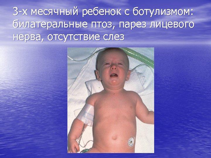 3 -х месячный ребенок с ботулизмом: билатеральные птоз, парез лицевого нерва, отсутствие слез