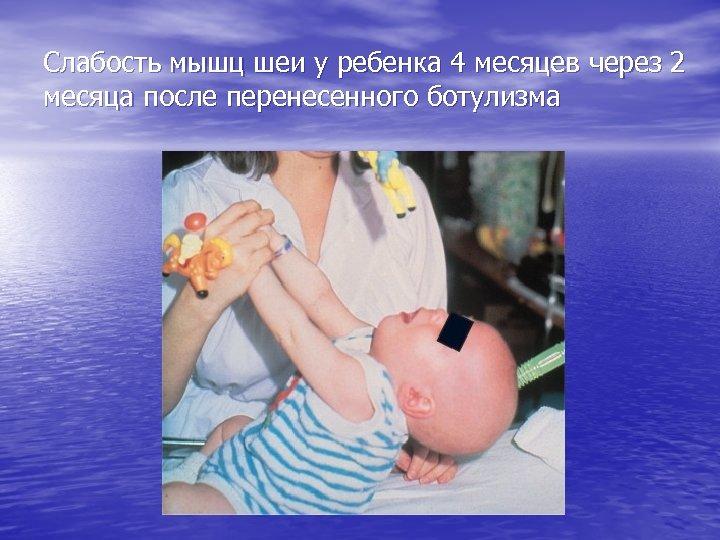 Слабость мышц шеи у ребенка 4 месяцев через 2 месяца после перенесенного ботулизма