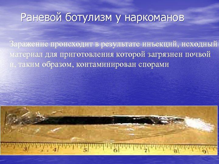 Раневой ботулизм у наркоманов Заражение происходит в результате инъекций, исходный материал для приготовления которой