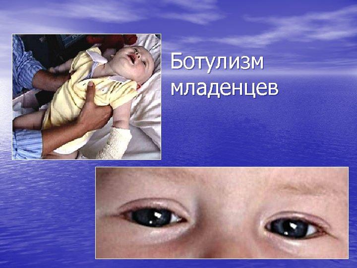 Ботулизм младенцев