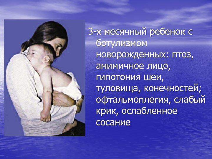 3 -х месячный ребенок с ботулизмом новорожденных: птоз, амимичное лицо, гипотония шеи, туловища, конечностей;