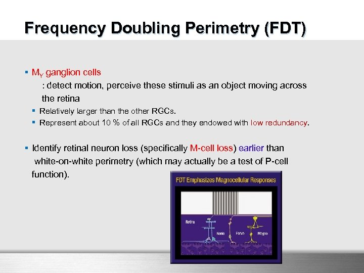 FDT Frequency Doubling Perimetry (FDT) § MY ganglion cells : detect motion, perceive these